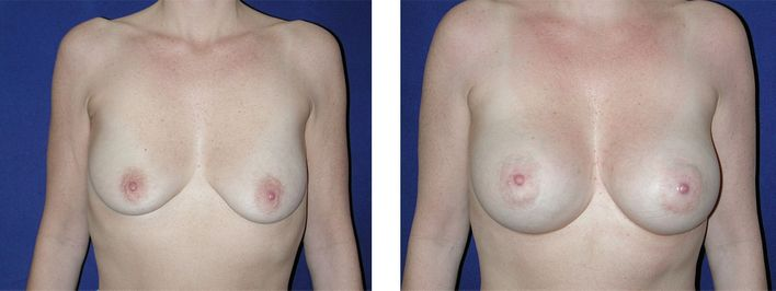 49 Year Old Female - Breast Lift - bodybyZ
