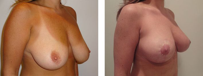 40 Year Old Female - Breast Lift - bodybyZ