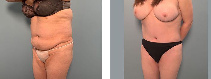 56 Year Old Female - Tummy Tuck Surgery - bodybyZ