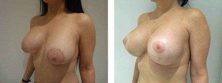 36 Year Old Female - Breast Lift - bodybyZ