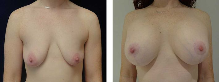 28 Year Old Female - Breast Revision - bodybyZ