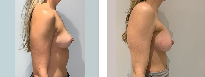34 Year Old Female - Transaxilary Breast Augmentation