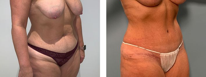37 Year Old Female - Tummy Tuck Surgery - bodybyZ