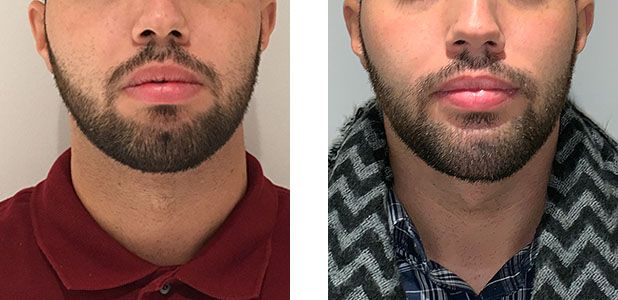 Young Male - Neck Lift - bodybyZ
