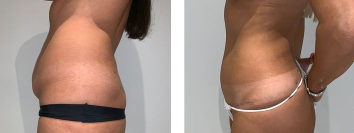 41 Year Old Female - Tummy Tuck Surgery
