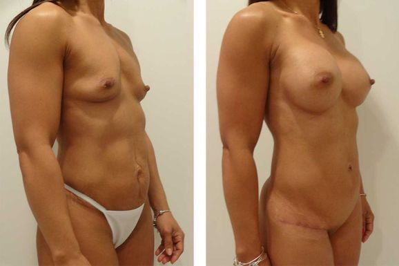 39 Year Old Mother - TABA - bodybyZ