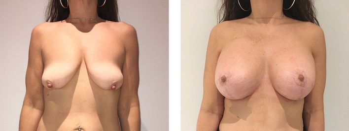 Breast Lift - bodybyZ