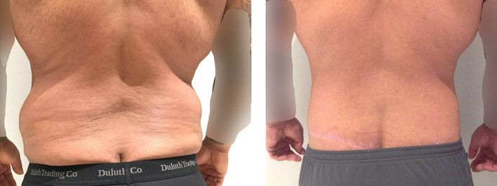 40 Year Old Male - Tummy Tuck Surgery