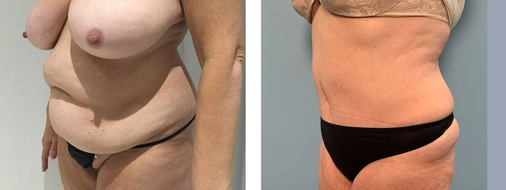 52 Year Old Female - Tummy Tuck Surgery - bodybyZ