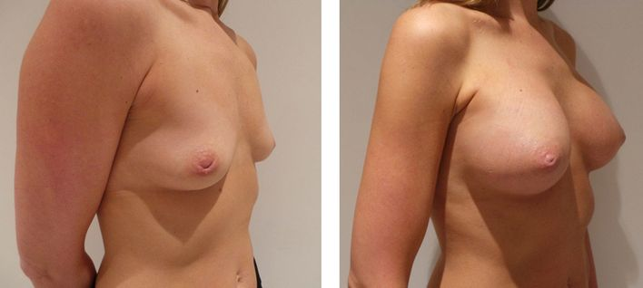 35 Year Old Female - Breast Augmentation