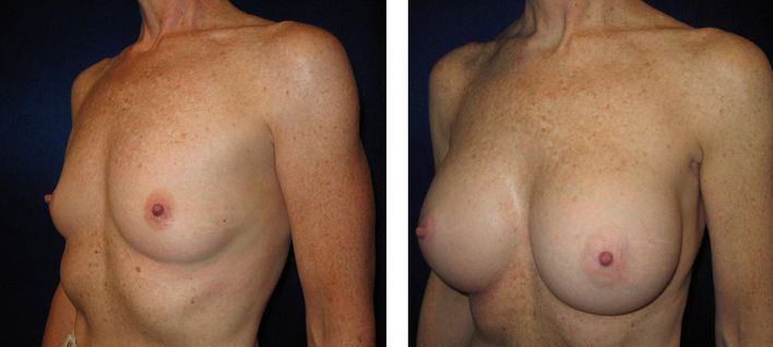 40 Year Old Female - Breast Augmentation