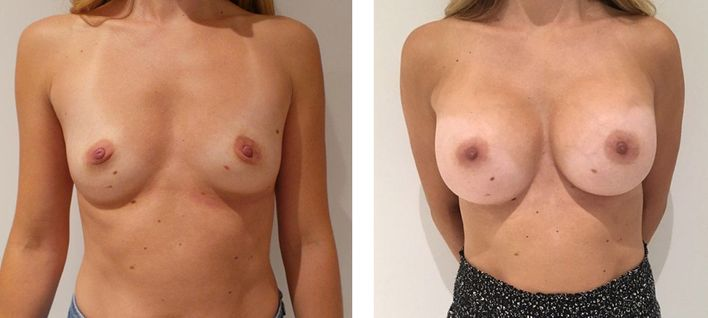 31 Year Old Female - Breast Augmentation