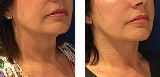 Face & Neck Lift - bodybyZ