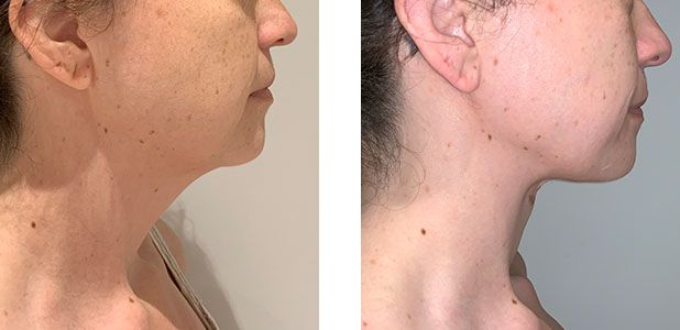 36 Year Old Female - Neck Lift - bodybyZ