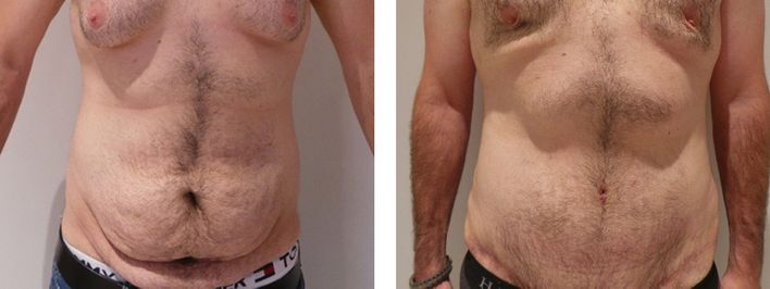 19 Year Old Male - Tummy Tuck Surgery