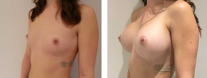 28 Year Old Female - Breast Augmentation