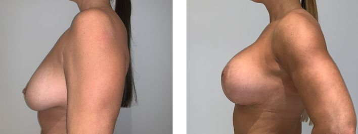 41 Year Old Female - Breast Lift - bodybyZ