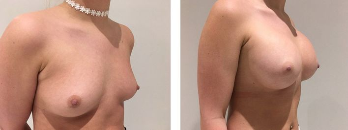 25 Year Old Female - Breast Augmentation