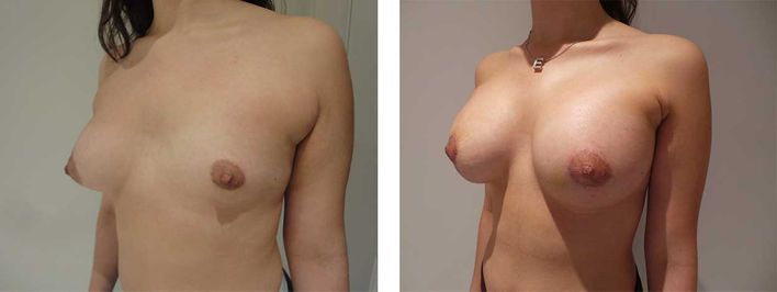 20 Year Old Female - Breast Lift - bodybyZ