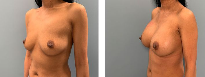 38 Year Old Female - Breast Augmentation