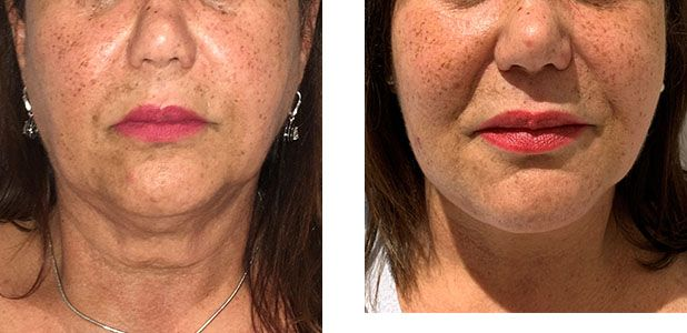 59 Year Old Female - Face Lift