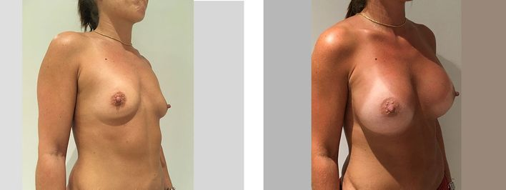 34 Year Old Female - Breast Augmentation