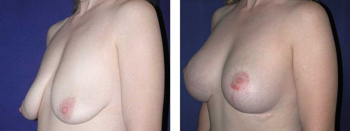 43 Year Old Female - Breast Lift - bodybyZ