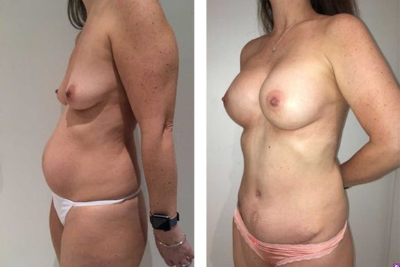 36 Year Old Female - TABA - bodybyZ