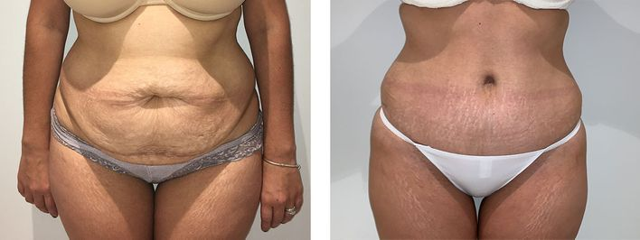 40 Year Old Female - Tummy Tuck Surgery - bodybyZ