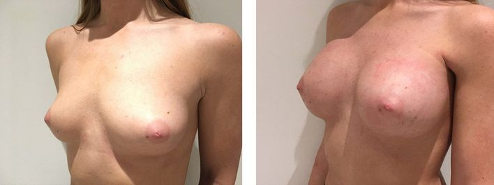 26 Year Old Female - Breast Augmentation