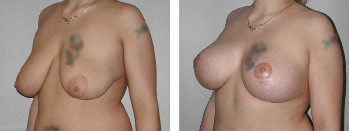 21 Year Old Female - Breast Lift - bodybyZ