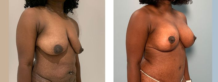 34 Year Old Female - Breast Lift - bodybyZ