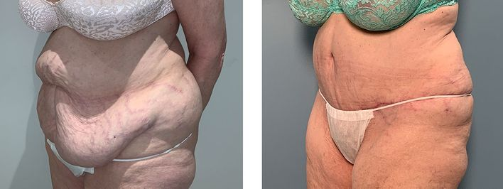 73 Year Old Female - Tummy Tuck Surgery