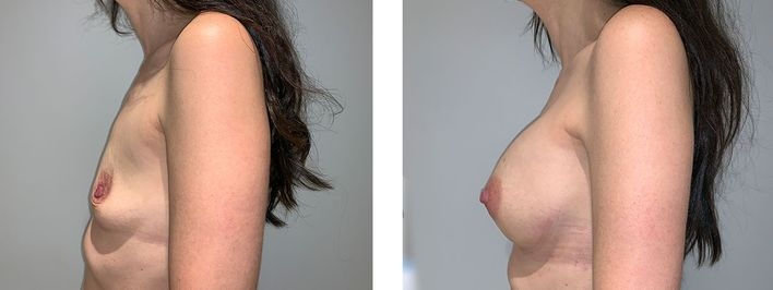 43 year old female - Breast Augmentation