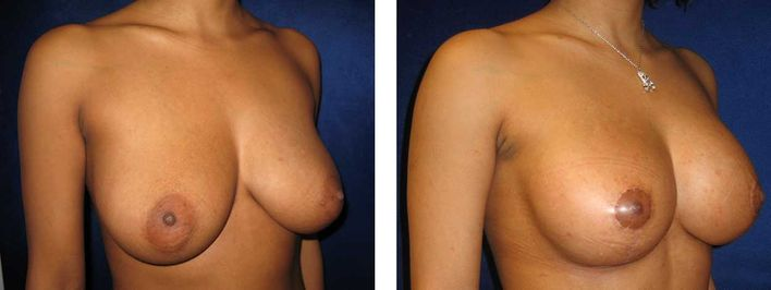 35 Year Old Female - Breast Lift - bodybyZ