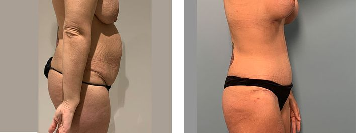 36 Year Old Female - Tummy Tuck Surgery - bodybyZ