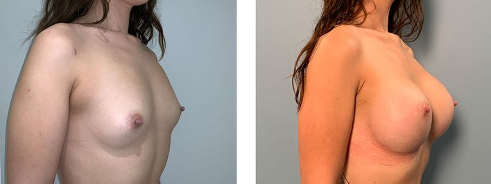 24 Year Old Female - Breast Augmentation