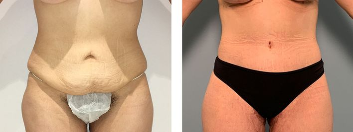 Tummy Tuck Surgery - bodybyZ