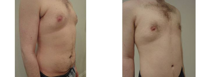 27 Year Old Male - Tummy Tuck Surgery