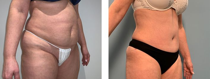 45 Year Old Female - Tummy Tuck Surgery - bodybyZ