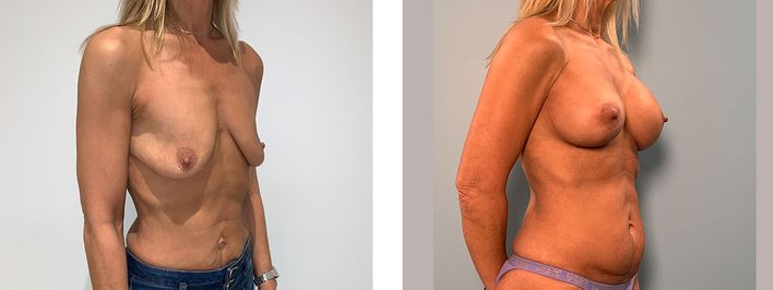 51 Year Old Female - Breast Lift - bodybyZ