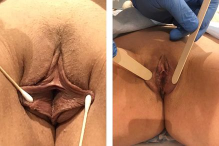 Labiaplasty Surgery - bodybyZ