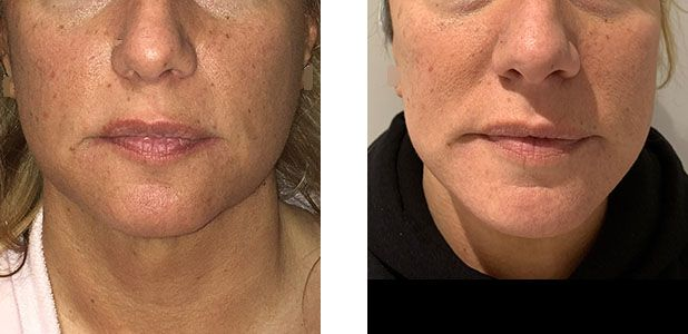 47 Year Old Female - Face Lift