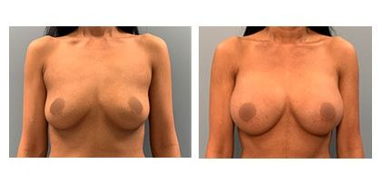 Breast Augmentation Surgery, breast implants