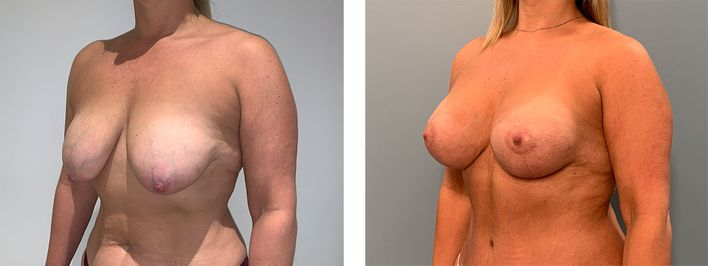 45 Year Old Female - Breast Revision - bodybyZ