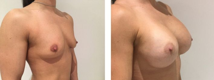 30 Year Old Female - Breast Augmentation