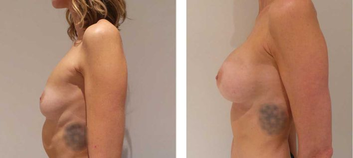33 Year Old Female - Breast Augmentation