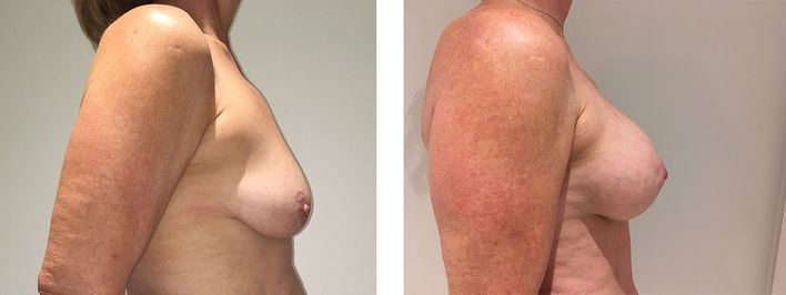 54 Year Old Female - Breast Lift - bodybyZ