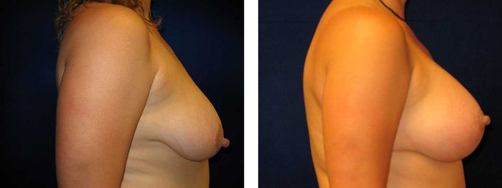 32 Year Old Female - Breast Revision - bodybyZ